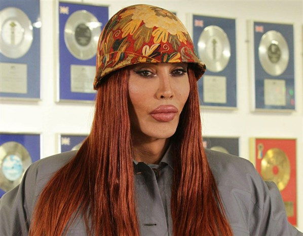 pete burns dead or alive